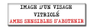 Ame_sensible-vitriol-b11ed